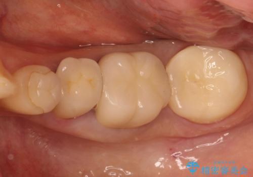 奥歯の被せものの症例 治療後