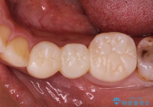 奥歯のブリッジをセラミックにやりかえたいの治療中