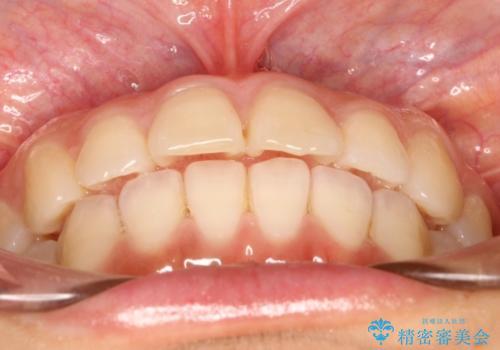 インビザラインで前歯のデコボコを目立たず矯正の治療後