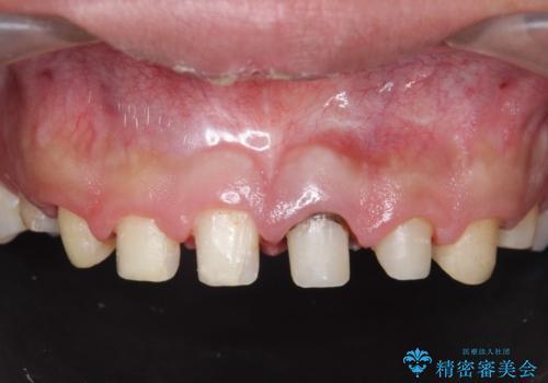 オールセラミッククラウン 前歯の審美治療の治療中