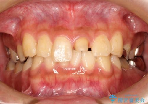 折れた前歯のセラミック修復 根管治療のやり直しもおこなうの治療中