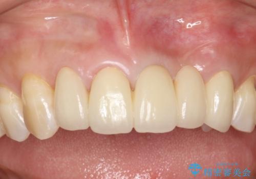 前歯のセラミックブリッジ 長すぎる前歯を部分矯正で修正するの治療後