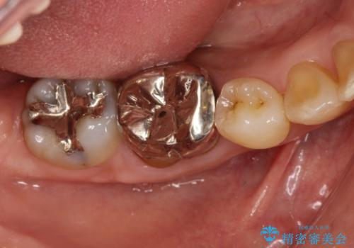 銀歯のやり直し セラミックで奥歯をきれいにの治療前