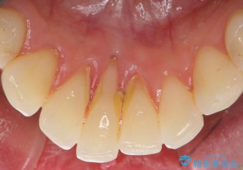 スケーリングで固まった歯石を除去の治療前