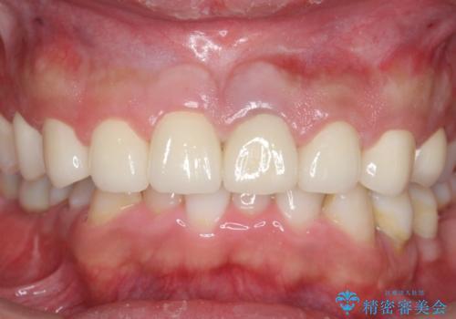 オールセラミッククラウン 前歯の審美治療の治療後