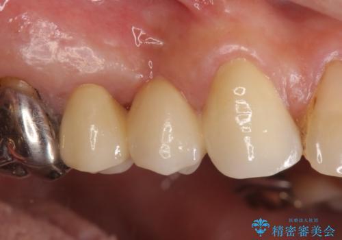 オールセラミッククラウン 歯根破折⇒抜歯⇒ブリッジによる補綴の治療後