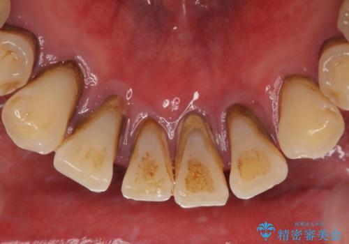 歯石除去の治療前
