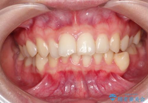 前歯のがたがた 出っ歯が気になる 永久歯が一本足りない変則的な治療の症例 治療前