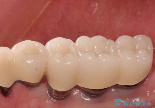 奥歯で噛めない インプラントとセラミックによる咬み合わせの回復の治療後