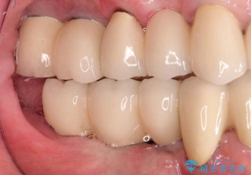 奥歯で噛めない インプラントとセラミックによる咬み合わせの回復の症例 治療後