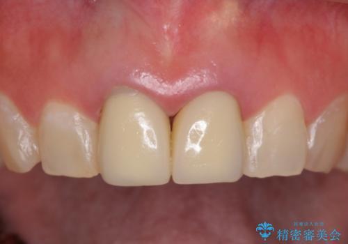 前歯を白くきれいに メタルフリーへの治療前