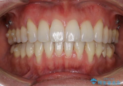 矯正治療で下がってしまった歯茎の移植の治療前