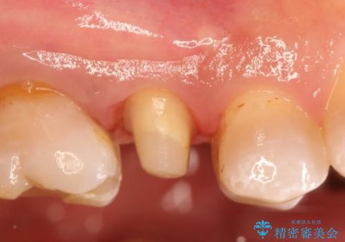 保険の白い歯が割れた。の治療中