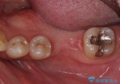 奥歯の割れてしまった歯 ストローマンインプラントによる咬合回復の治療中