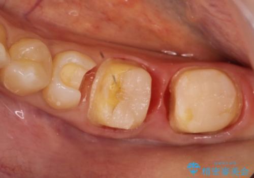 劣化した詰め物と虫歯の治療の治療中