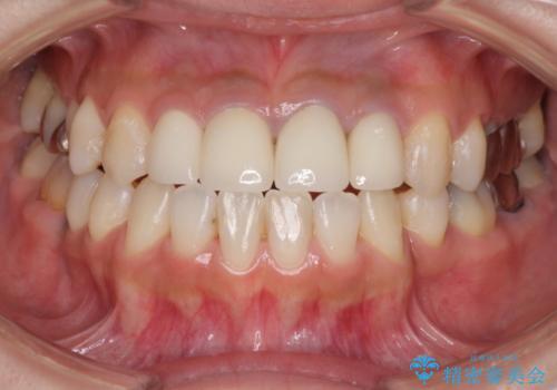 きれいな白い歯をいれたい 前歯の補綴治療前のホワイトニングの治療後