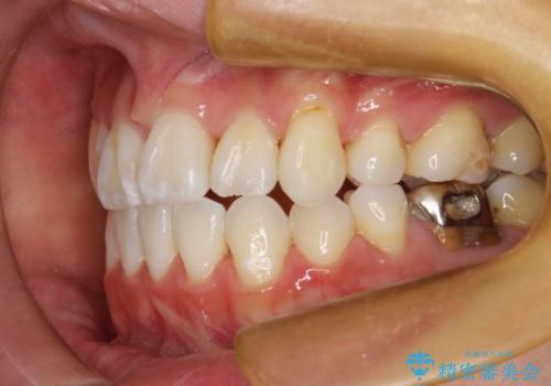 ハーフリンガルによる八重歯の治療 3incisor 症例の治療後