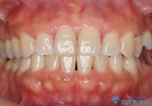 歯の黄ばみをホワイトニングで白く。の症例 治療前