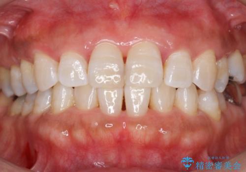 歯の黄ばみをホワイトニングで白く。の症例 治療後