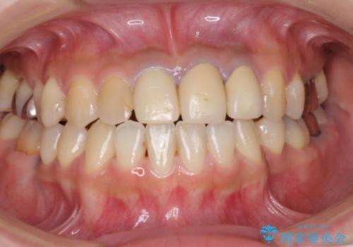 きれいな白い歯をいれたい 前歯の補綴治療前のホワイトニングの治療前