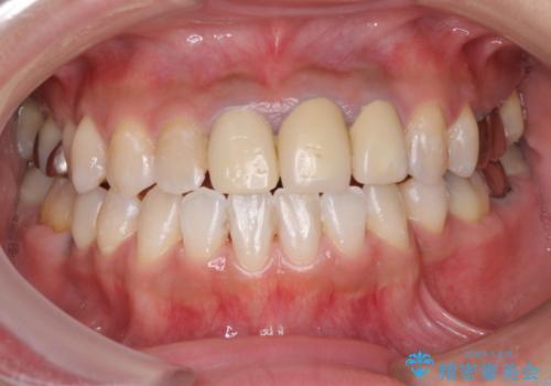 きれいな白い歯をいれたい 前歯の補綴治療前のホワイトニングの治療中