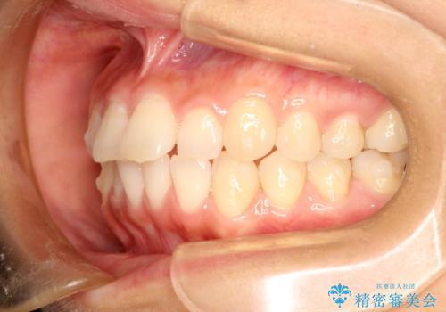 インビザラインで前歯のデコボコを目立たず矯正の治療中