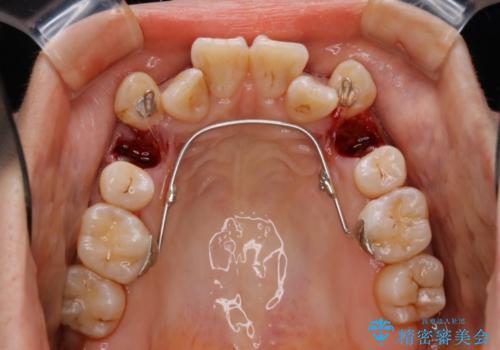 ハーフリンガルによる八重歯の治療 3incisor 症例
