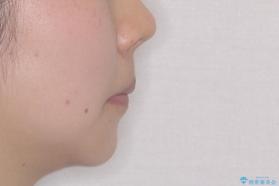 前歯のがたがた 出っ歯が気になる 永久歯が一本足りない変則的な治療の治療後(顔貌)