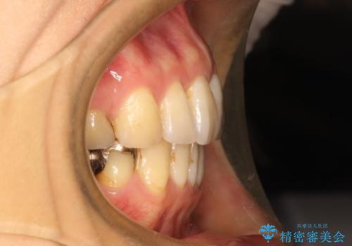 ハーフリンガル ワイヤー矯正 出っ歯の矯正治療の治療後