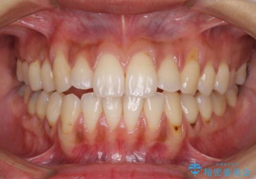 歯根の露出を隠したい 歯肉移植による根面被覆の治療前