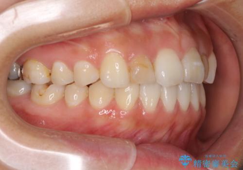 前歯の歯並びと変色を改善 インビザラインとオールセラミックの治療中