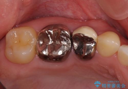 奥の銀歯を白くしたい オールセラミッククラウンによる補綴治療の症例 治療前
