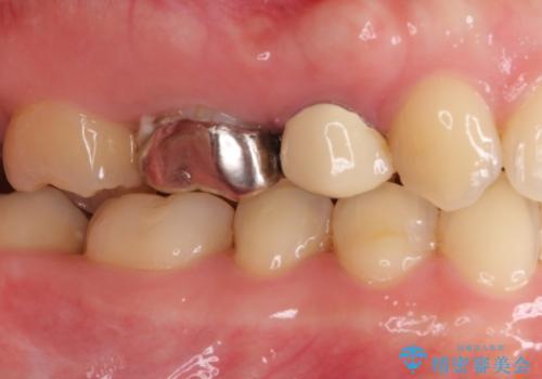 奥の銀歯を白くしたい オールセラミッククラウンによる補綴治療の治療前