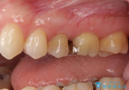 正面から見える奥の銀歯 セラミックインレーで改善の治療前