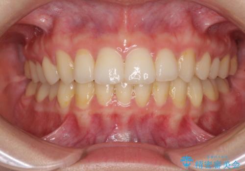 前歯のがたがた 出っ歯が気になる 永久歯が一本足りない変則的な治療の症例 治療後