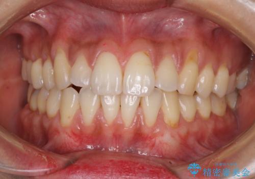 歯根の露出を隠したい 歯肉移植による根面被覆の症例 治療後