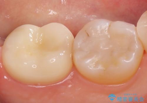 オールセラミッククラウン 奥歯の虫歯治療の治療後