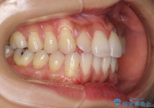 歯根の露出を隠したい 歯肉移植による根面被覆の治療後