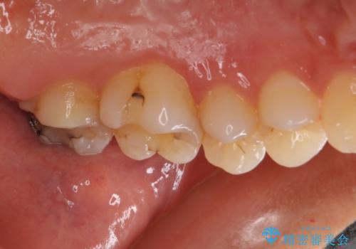 奥歯の虫歯をゴールドインレーで修復治療の治療前