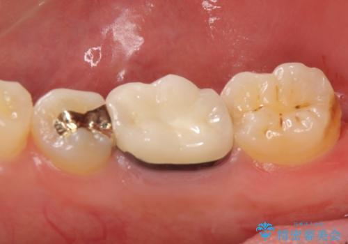 メタルボンドクラウン PGA(ゴールド)インレー 虫歯治療の治療後