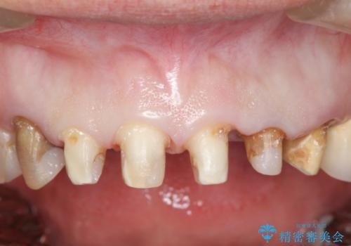 オールセラミッククラウン 前歯をきれいにの治療中