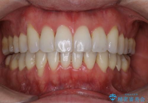 矯正治療で下がってしまった歯茎の移植の治療後