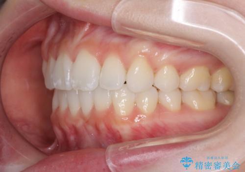 前歯の出っ歯とでこぼこを抜歯矯正で改善 目立たないワイヤー矯正の治療後