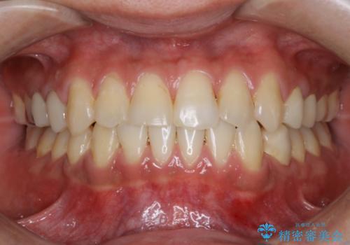 前歯の反対咬合 インビザラインできれいに修正の症例 治療後