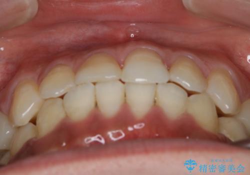 前歯の反対咬合 インビザラインできれいに修正の治療後