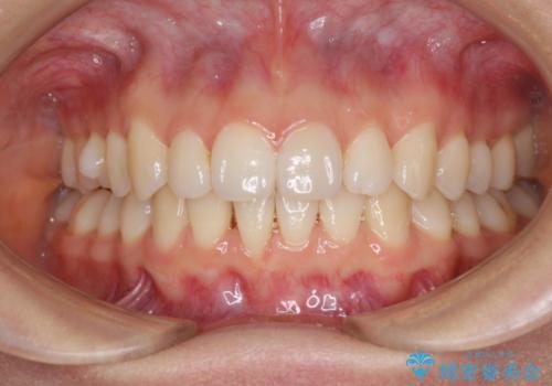 上の出っ歯を治したい インビザラインによる非抜歯矯正治療の治療後