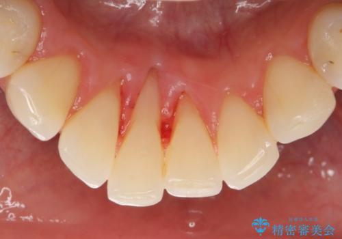 スケーリングで固まった歯石を除去の治療後