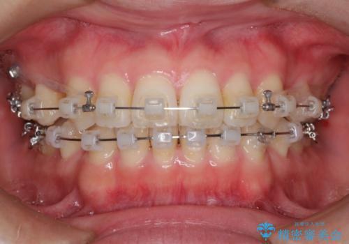 表側のワイヤー矯正 口元の改善をはかる抜歯矯正の治療中