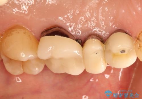 奥歯の被せものの治療後