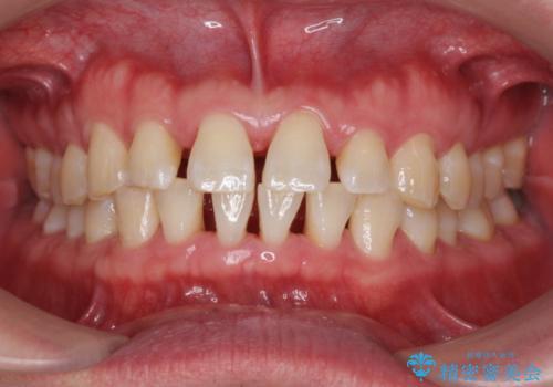 歯石除去の治療後